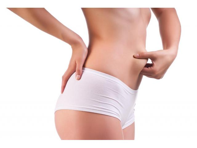 Liposuction Surgery in Lahore