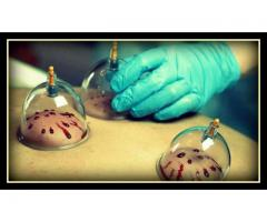 Hijama In Chinese Hospital Lahore